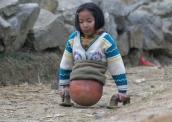 A menina que usava bola de basquete no lugar das pernas 172-x-122